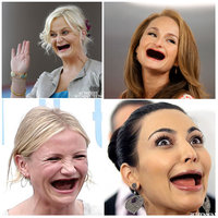 Actresses Without Teeth