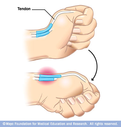 ds00692_im00780_ans7_finkelsteintestthu_jpg how to break your thumb ligament know your meme