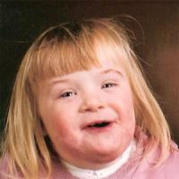 Useful idea Downs syndrome girl facebook