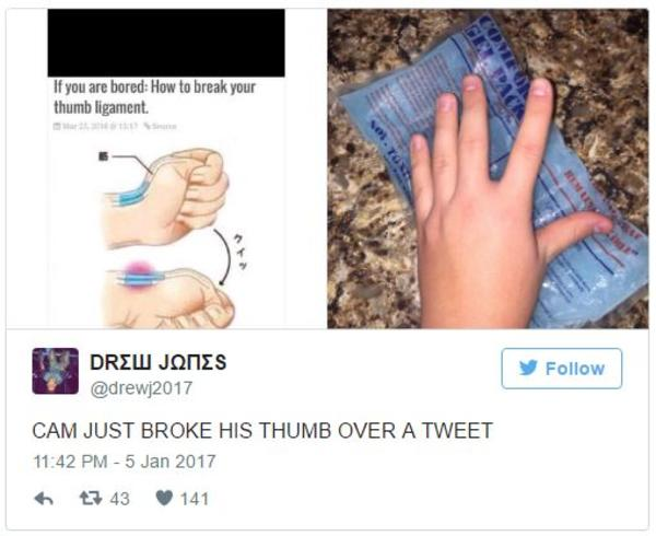 668 how to break your thumb ligament image gallery know your meme