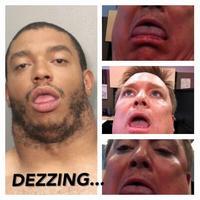 Dezzing