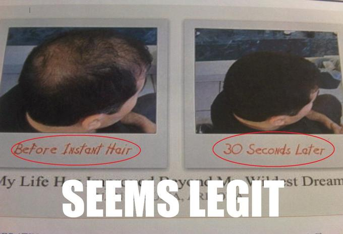 Hair Growth Seems Legit