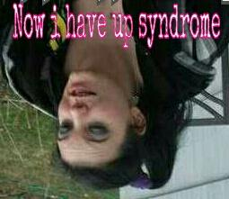 now i have up syndrome
