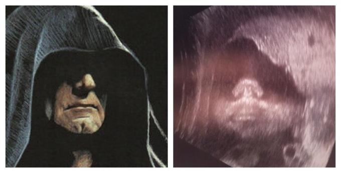Dark Side of the Womb